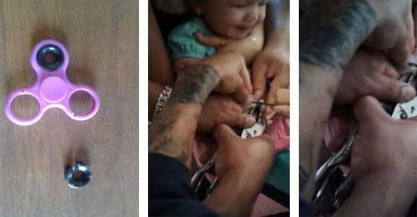 Parents Horrified after Their Baby's Finger Got Stuck in a Fidget Spinner something not for Babies