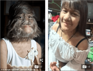 World's Hairiest Woman Shaves for the First Time to Marry the Love of Her Life