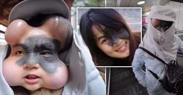 Woman with Cancerous Facial Mole has Four Balloons Implanted in Her Face to Stretch the Skin