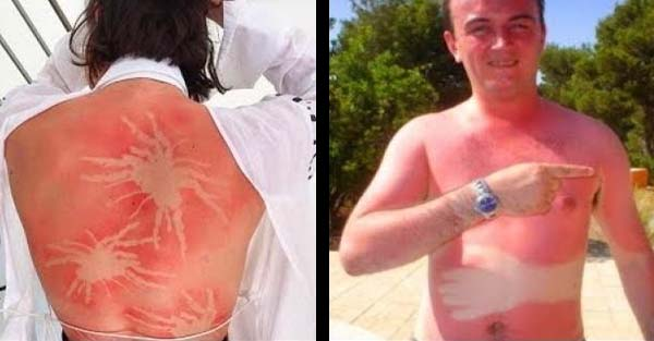 19 Photos that Prove the Sun Is an Evil Tattoo Artist